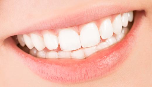 Éclaircissement dentaire Pessac